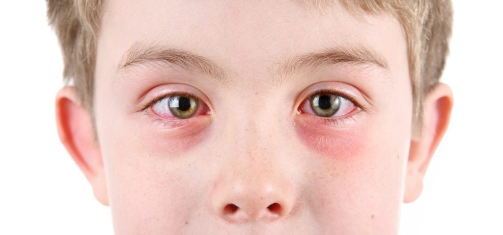 Young boy with pink eye-related symptoms