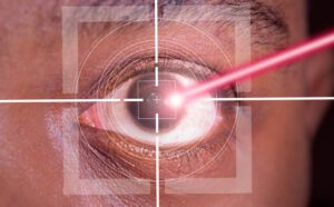 A laser beam shining into the eye of an African American patient