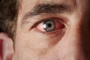 Man with red, irritated eyes that can be a symptom of glaucoma